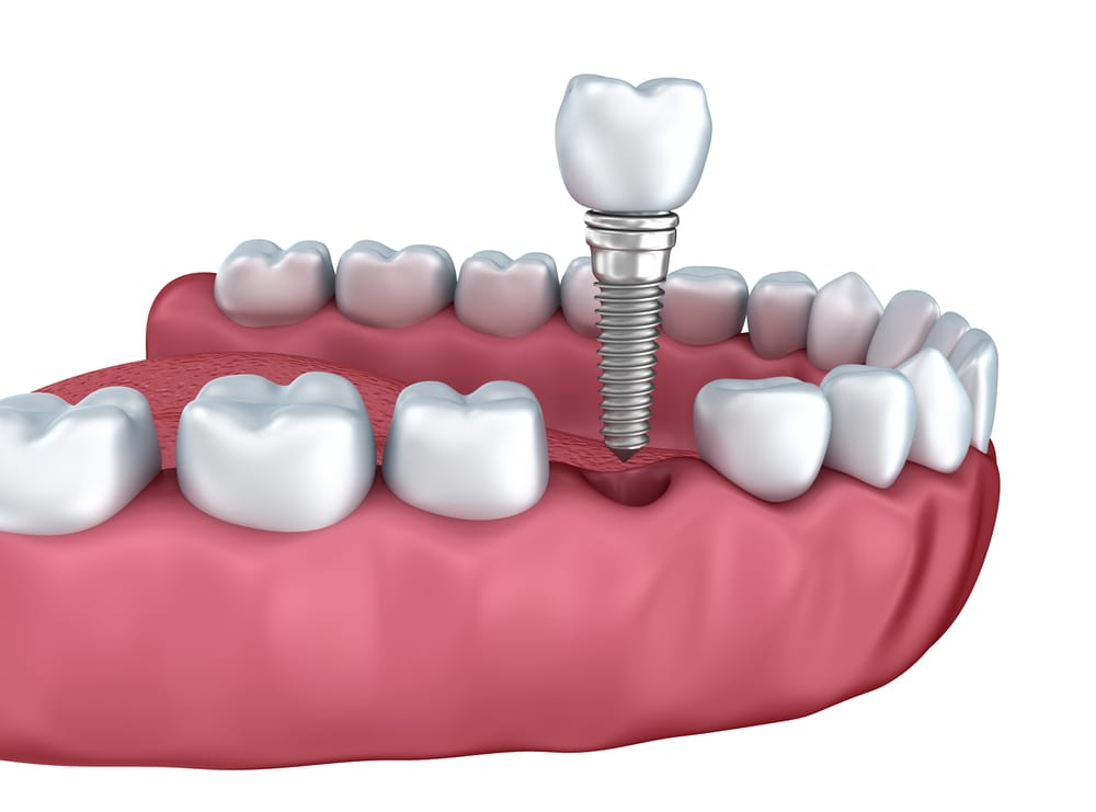Who is the best dentist for Dental Implants in North Miami ?