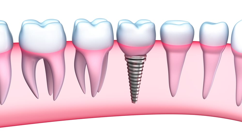 what are the benefits of Dental Implants in Miami Gardens ?